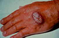 Lesión por leishmania en humanos
